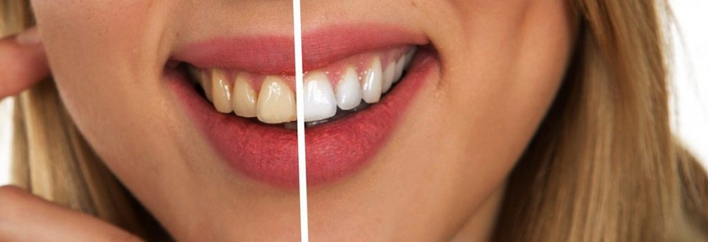 How much influence do your teeth have during a job interview?